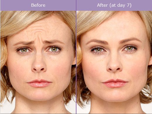 botox-dysport-brampton-cosmetic-before-after-female