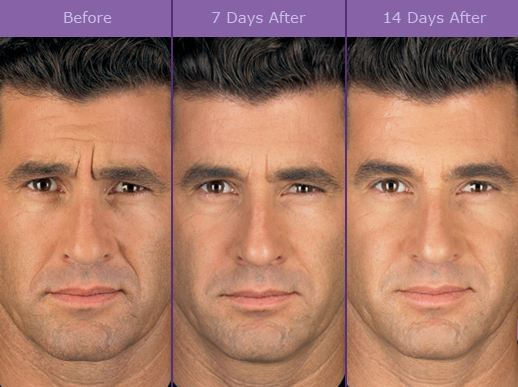 botox-dysport-brampton-cosmetic-before-after-male