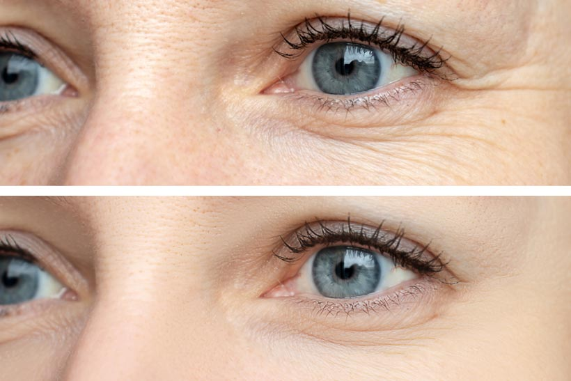 botox-dysport-brampton-cosmetic-before-after-female-2